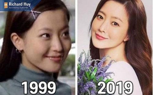 Sự thay đổi đang ngờ từ năm 1999-2019