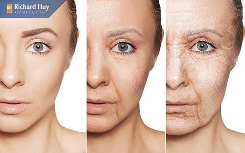 Lão hóa là nguyên nhân chính gây nếp nhăn khóe mắt