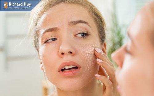 Chăm sóc da kém cũng là nguyên nhân khiến da mặt bị mỏng