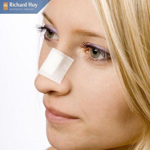 Chất liệu của sụn không đảm bảo có thể khiến da mũi bị thủng