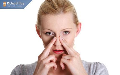 Thon gọn và điều chỉnh cánh mũi