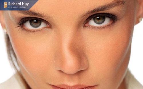 Mũi gãy là đường sống mũi không được thẳng mà trở nên đứt đoạn và gồ ghề