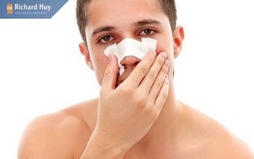 Mũi bị hỏng do va đập như ngã ki chơi thể thao hay tay nạn