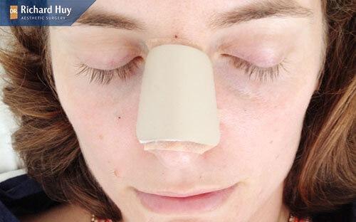 Thực hiện tại những nơi thiếu uy tín khiến mũi bị hỏng