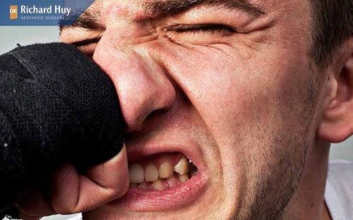 Mũi gãy do va chạm hoặc tai nạn làm xương mũi bị tổn thương