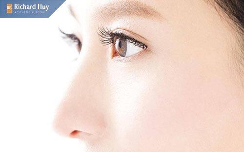 Nâng mũi bán cấu trúc không để lại sẹo hiệu quá duy trì trong thời gian dài