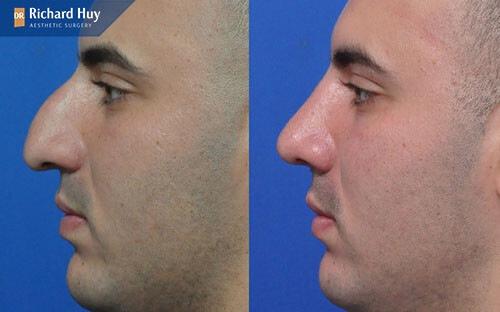 Nâng mũi ở nam giới