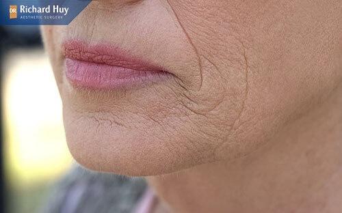 Lão hóa là nguyên nhân khiến nếp nhăn khóe miệng hình thành