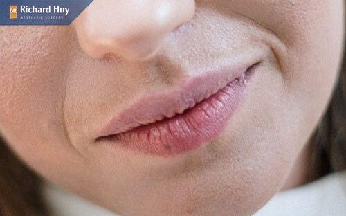 Thiếu nước cũng là nguyên nhân gây nếp nhăn khóe miệng