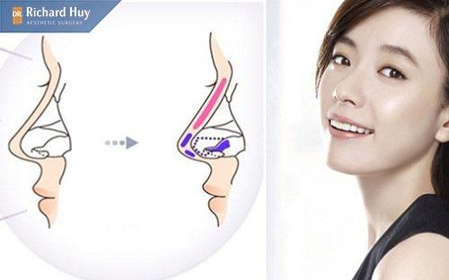 Quy trình thực hiện của nâng mũi bọc sụn