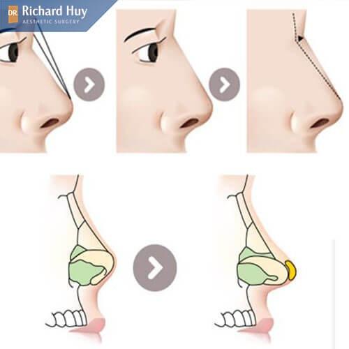 Các bước của quy trình thực hiện thẩm mỹ mũi chuẩn Tây