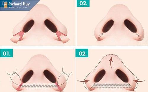 Quy trình thực hiện thu nhỏ cánh mũi