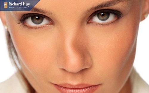 Sửa mũi bọc sun có thể gây tình trạng cong vênh hoặc lệch khỏi vị trí ban đầu