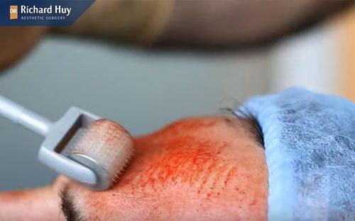 Tái tạo da với phương pháp lăn kim có thể gây sưng phù nề khuân mặt