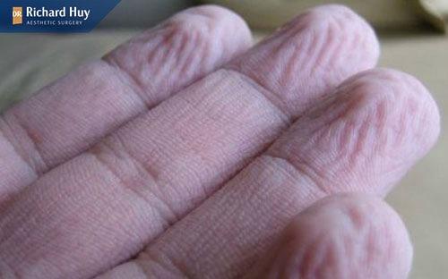 Da tay nhăn nhéo giúp cải thiện độ bám dính, đàn hồi của da