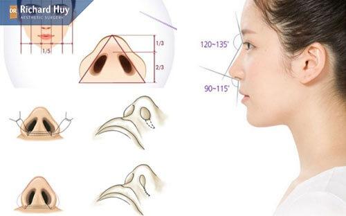 Thu gọn cánh mũi là gì
