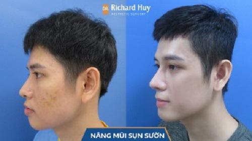 Thay đổi đang ngờ trước và sau khi nâng mũi tại Dr. Richard Huy