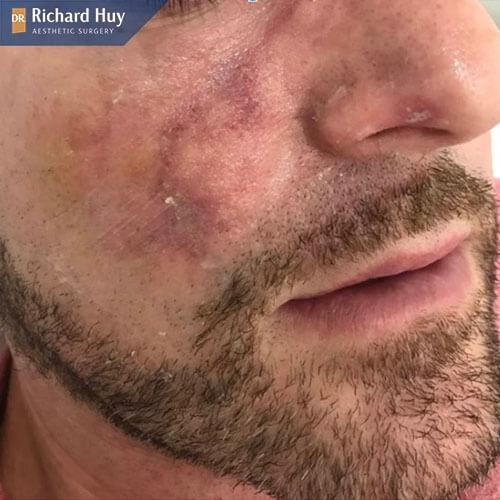 Bị dị ứng khi tiêm botox