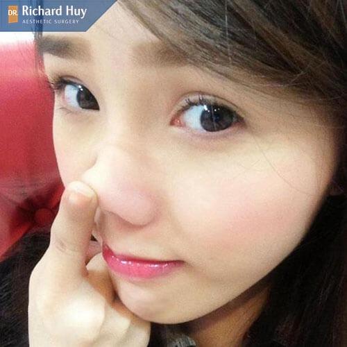 Tuyệt đối không sờ nắn làm ảnh hưởng tới việc định hình dáng mũi