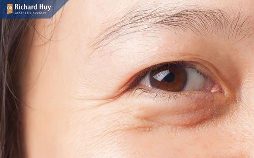 Vết chân chim suất hiện quanh mắt
