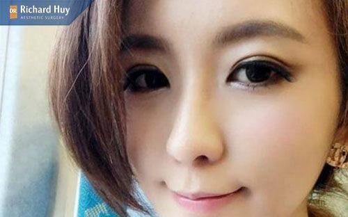 Nâng mũi cấu trúc 4D giúp bạn có dáng mũi đẹp tự nhiên