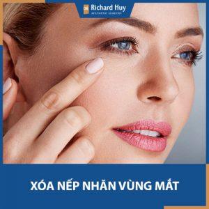 Tổng hợp các cách xóa nếp nhăn vùng mắt hiệu quả khiến bạn ngờ bất ngờ